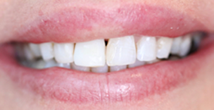 After image of Change Implant Crown and Improve Overall Aesthetic Appearance