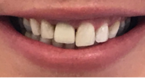 Before image of Change Implant Crown and Improve Overall Aesthetic Appearance