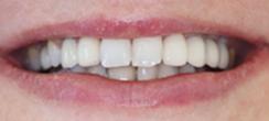 After image of Dental Implants Replacing Multiple Missing Teeth