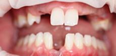 Before image of Dental Implants Replacing Multiple Missing Teeth