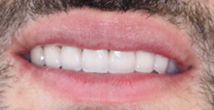 After image of Emax Aesthetic Crowns