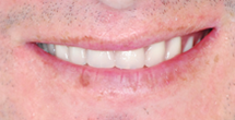 After image of Full Upper and Lower Dentures