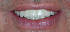 After image of Implant Retained Bridge