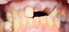 Before image of Implant Retained Bridge