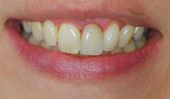 After image of Partial Denture