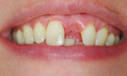 Before image of Partial Denture