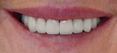 After image of Replacement of Partial Denture with Zirconia Bridge