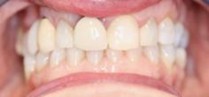 Before image of Replacement of Partial Denture with Zirconia Bridge