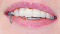 After image of Two Implants Replacing 4Anterior Teeth