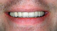 After image of Dental Bridges