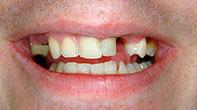 Before image of Dental Bridges