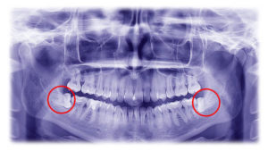 Dental Extractions at Dr. Billy Waters Dental Implant and Restorative Dentistry Clinic