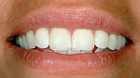 After image of Veneer Cosmetic Dentistry