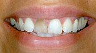 Before image of Veneer Cosmetic Dentistry