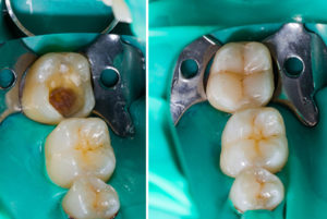 Image of Dental Fillings at Dr. Billy Waters Dental Implant and Restorative Dentistry Clinic