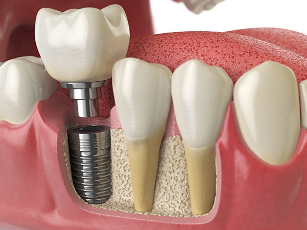 Detailed 3D image of dental implant at Dr. Billy Waters Dental Implant and Restorative Dentistry Clinic